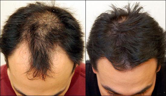 Las revocaciones sobre la máscara para los cabellos absolut repair loreal