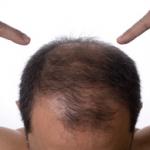 Cómo frenar la alopecia androgenética?