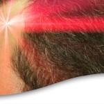 Terapia Laser