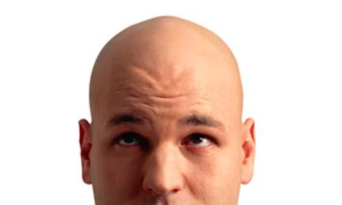 Por qué después de la coloración de los cabello caen los cabellos