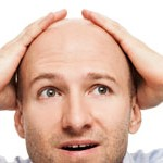 La calvicie y los problemas de próstata