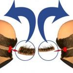 Transplante de cabello entre dos personas