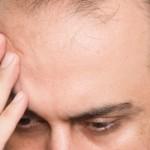 Calvicie prematura y problemas de próstata
