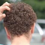 Infeccion en el cuero cabelludo