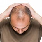 Aumento de la caída del cabello con la crisis