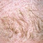 Tratar un eczema en el cuero cabelludo