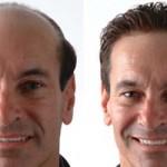 Efectos secundarios de un trasplante de cabello