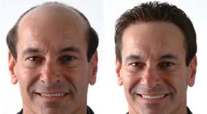 transplantes-de-cabello