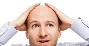 calvicie y problemas de prostata