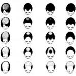 Alopecia Prematura