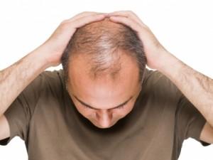 aumento_caida_cabello