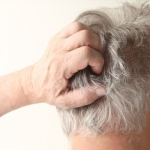 5 razones por las que puede picar el cuero cabelludo