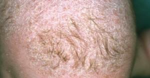 eczemas_capilares